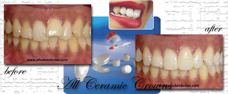 All ceramic crowns&bridges:Phuket Dentist,Thailand