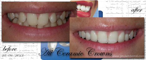 Al Ceramic crowns&bridges