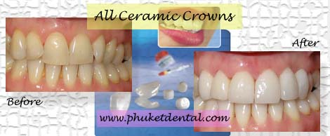 All ceramic crowns&bridges