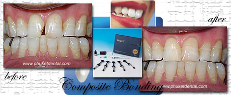Composite Filing/Dental Bonding