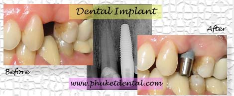 Dental Implant at Phuket dental clinic