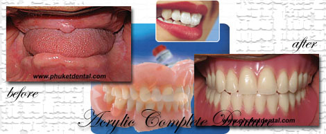 Complete Denture/Partial Dentures at Phuket Dental Clinic in thailand