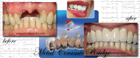 Titanium/ceramic crowns&bridges