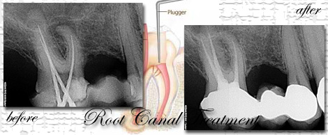 Root Canal Treatment by Phuket Dentist at Phuket Dental Clinic in Phuket,Thailand