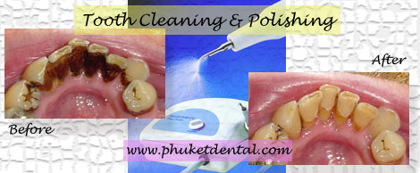 Tooth Cleaning:Phuket Dentist