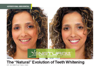 Natural Plus Tooth Whitening in Phuket,Thailand
